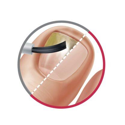 mycose ongle avant après traitement
