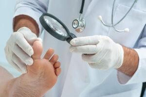 Comment reconnaitre une mycose de l'ongle