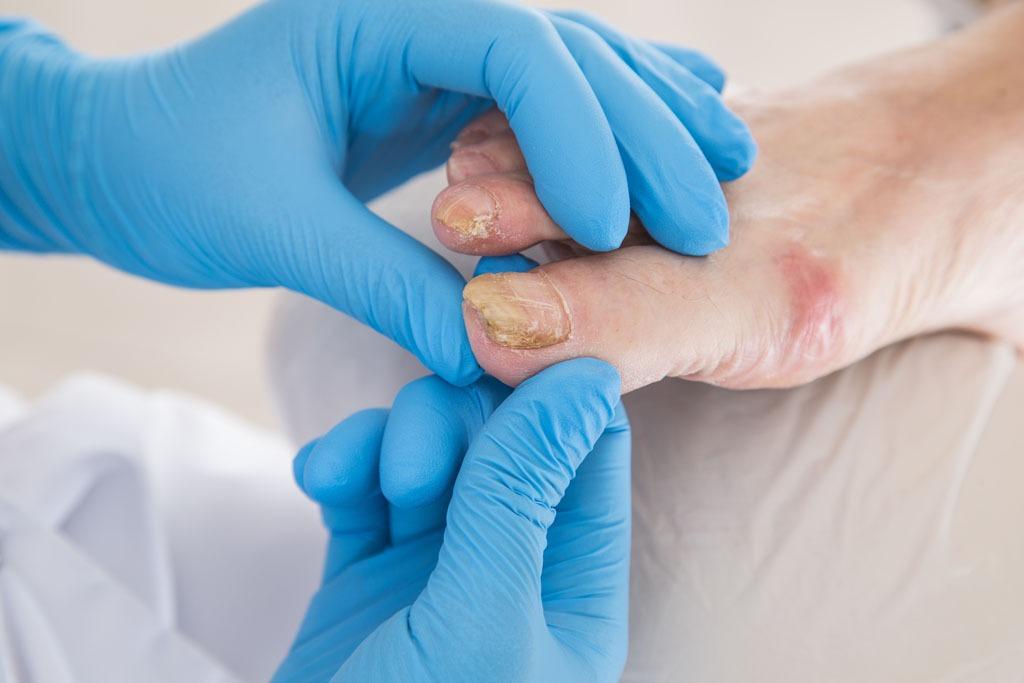 Behandlung von Nagelpilzen