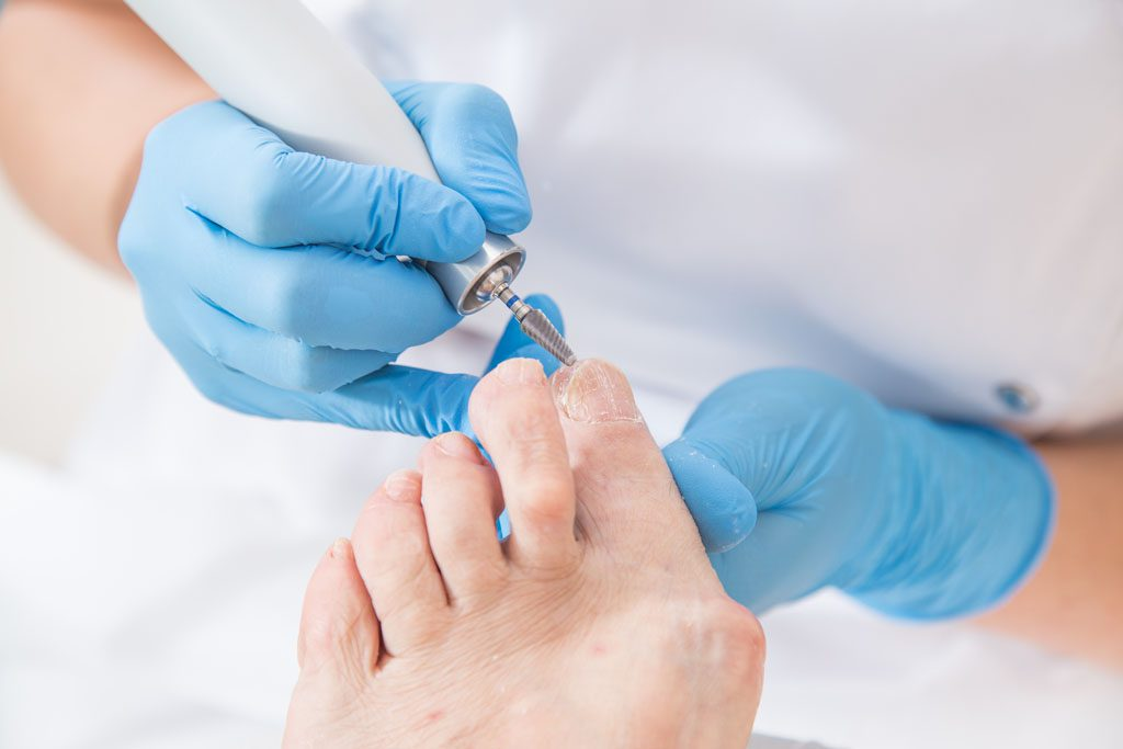 soigner une mycose de l'ongle du pied, traitement mécanique
