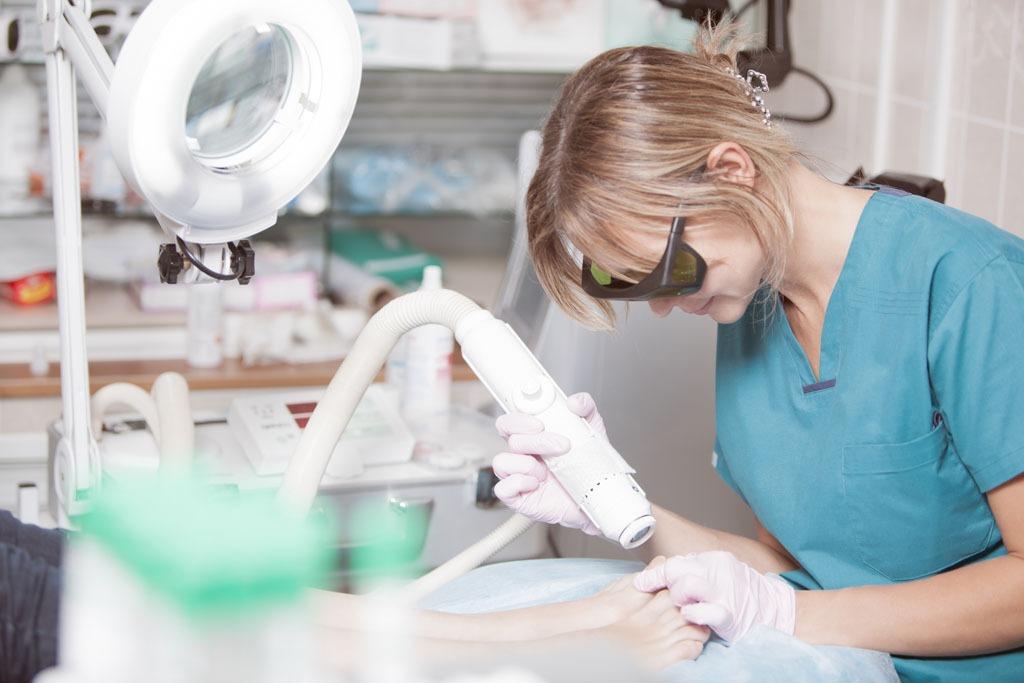 Le traitement des mycose par le laser