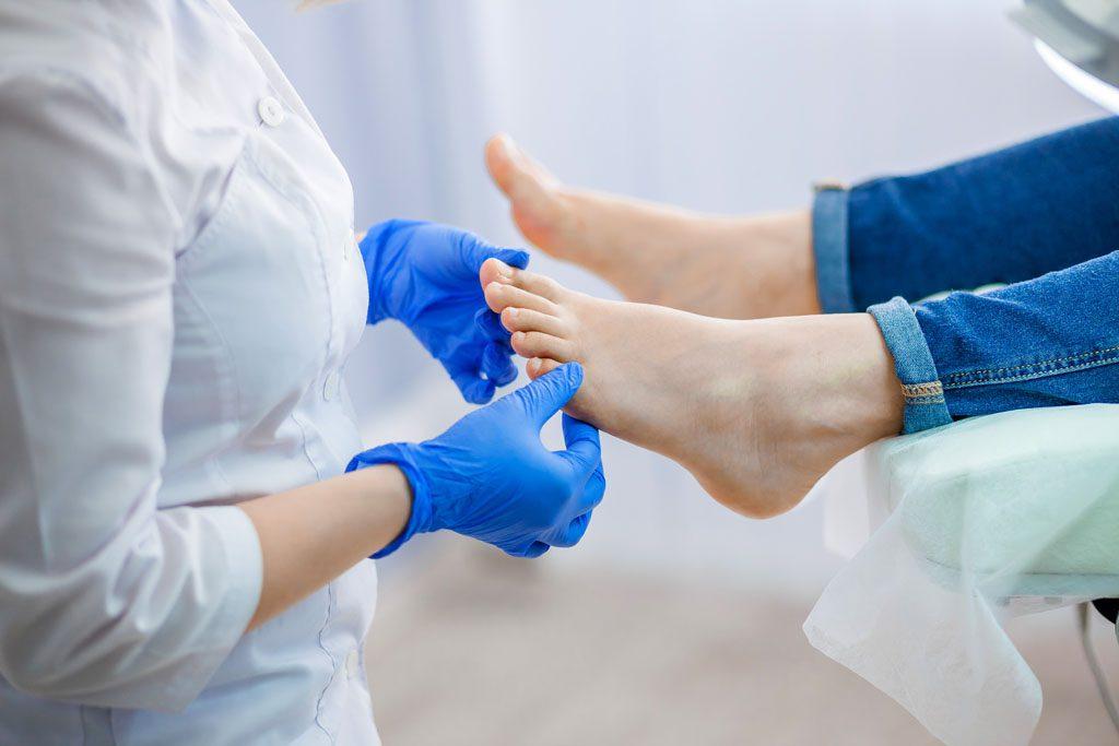 traitement de la mycose de l'ongle associé à un diabète