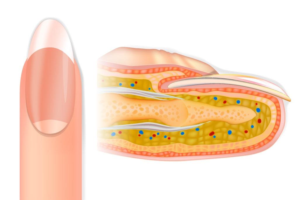 Der nagel: definition und menschliche anatomie