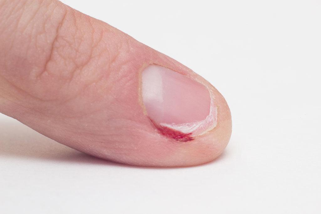 Possibles complications des personnes qui se rongent les ongles