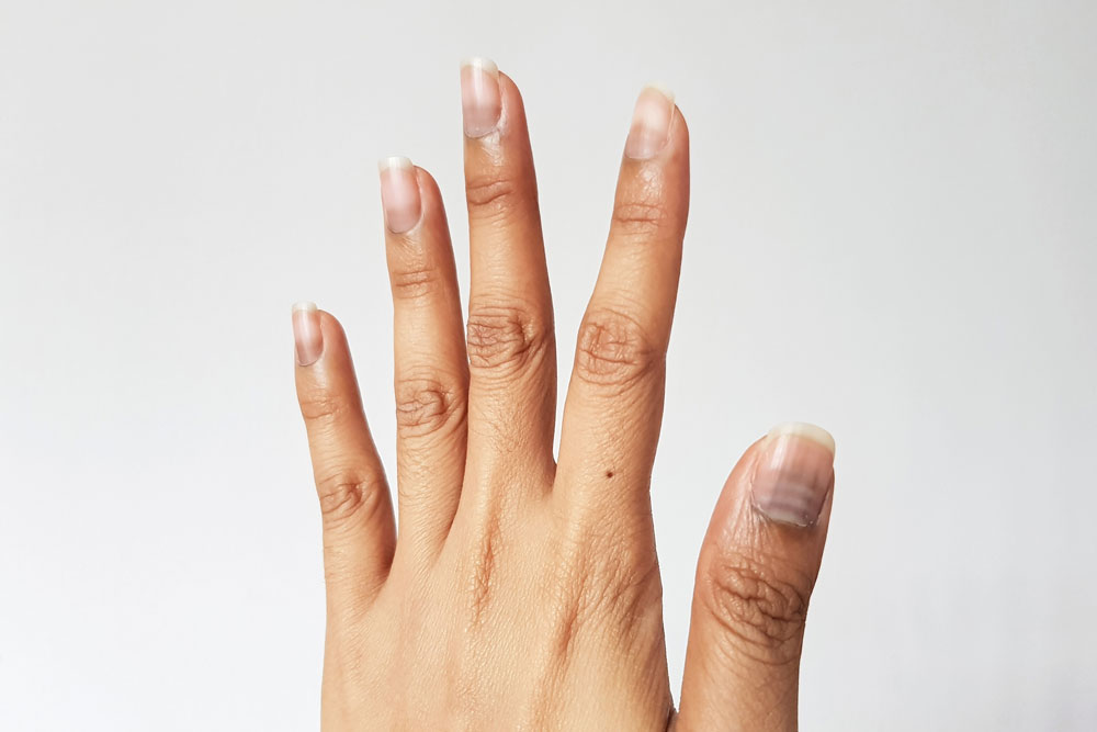 Nägel und Chemotherapie