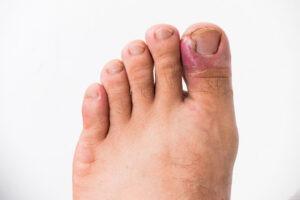 Comment reconnaître un ongle incarné ?