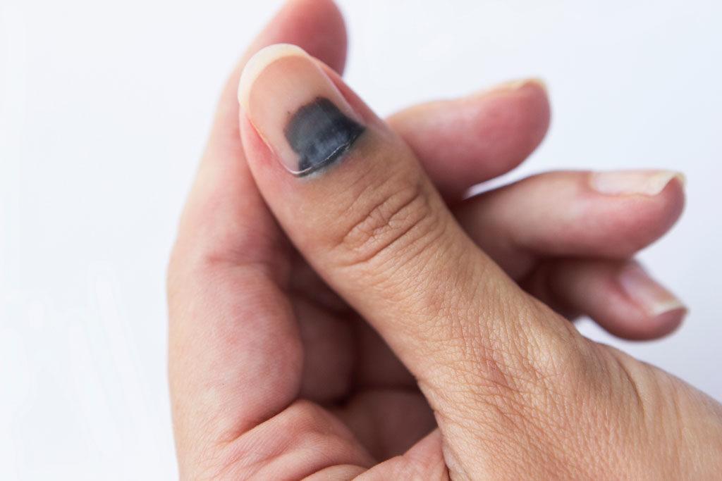traitement pour les ongles noirs