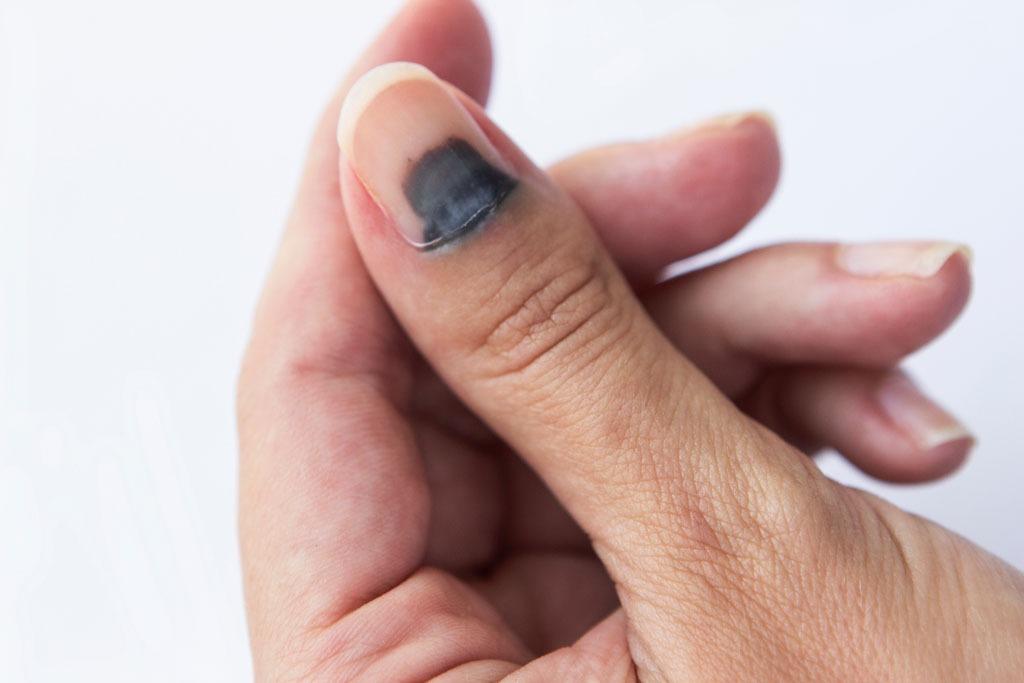 Wie behandelt man einen blauen nagel ?