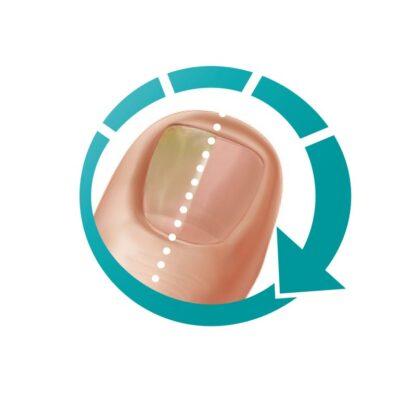 traitement aux huiles essentielles rapide et efficace pour les mycoses des ongles