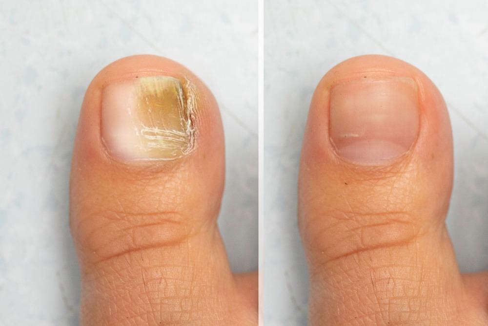en finir avec la mycose pour retrouver des ongles sains