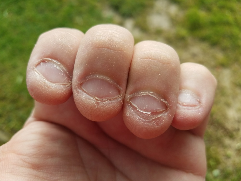 ongles ronges toc